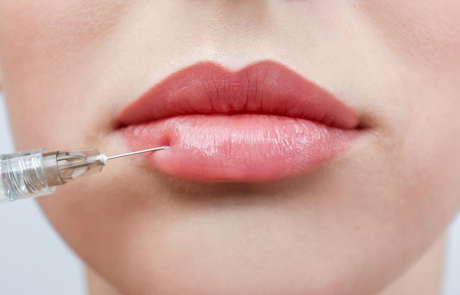 lip filler enhancement, edenmed aesthetics, chelsea, bournemouth, best lip filler, best lip injector
