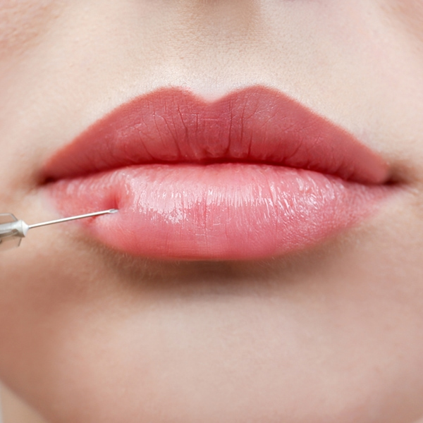 Lip and Cheek Fillers Bournemouth Poole Dorset - Copy