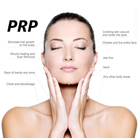 PRP, platelet rich plasma, vampire facial, edenmed, chelsea, bournemouth